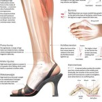 High Heels Are Alluring, but What About Your Health?